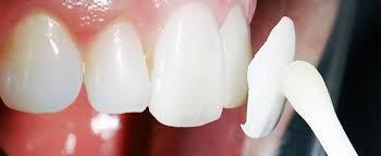 Люминиры в современной стоматологии — информация для пациентов