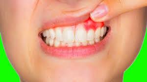 Кровоточивость десен: причины и лечение в домашних условиях
