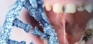 Открыли метод биоинженерии, позволяющий влиять на формирования корня зуба