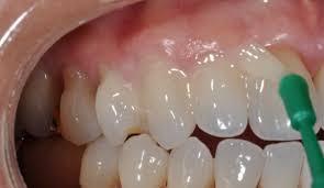Фторлак защитит детские зубы от кариеса