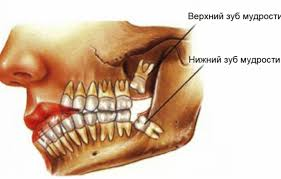 Внимание — зубы мудрости