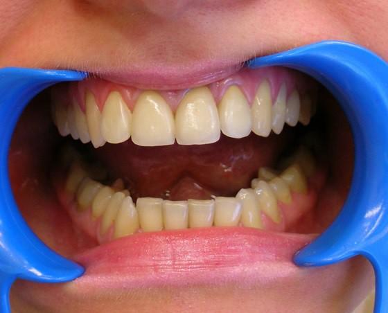 Зубы-резцы, их строение и форма