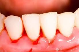 Стоматологи рассказали о причинах кровоточивости десен