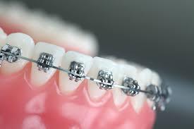 Обоснование подбора индивидуальных средств гигиены полости рта у детей, находящихся на ортодонтическом лечении