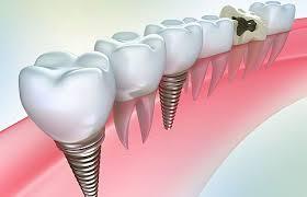 Современные технологии имплантации