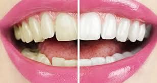 Названы привычки, разрушающие зубную эмаль