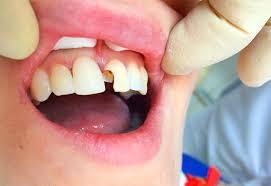 Плохие зубы вредят желудку