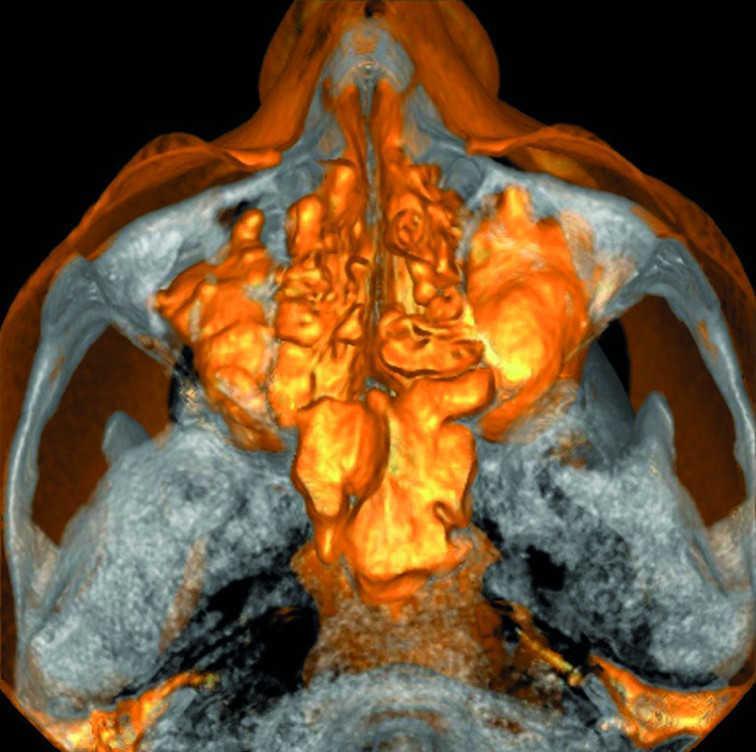 Синусит и осложнения эндодонтического лечения