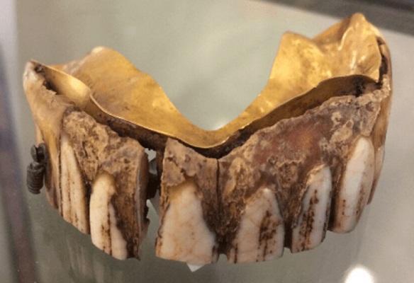 На аукционе выставили зубной протез из золота и бегемотовой кости, который оценили в 9 тысяч долларов