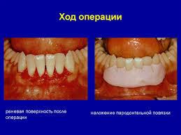 Гингивотомия, ход операции