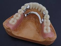Комбинированные зубные протезы