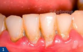Отказ от регулярной чистки зубов грозит опасными болезнями
