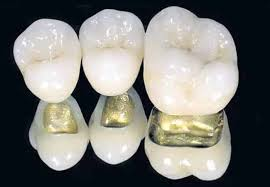 Металлокерамика из золота