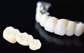 Металлокерамика для зубов