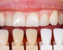 Композитные (прямые) виниры на зубы