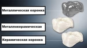 Какую коронку выбрать: сравниваем металл, керамику и новые материалы