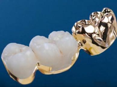 Устранение скола зубного протеза