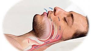 КЛКТ в ранней диагностике апноэ сна