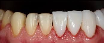 Препарирование зуба под винир