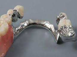 Почему слетают мостовидные протезы
