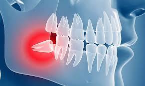 Ретенция, или задержка прорезывания, зубов