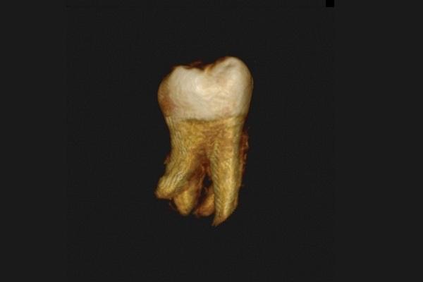 Эндодонтическое лечение нижнего второго моляра с четырьмя корнями