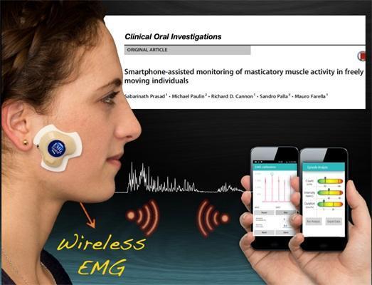 Новый электромиографический датчик и мобильное приложение для диагностики и оценки течения бруксизма, височно-нижнечелюстного синдрома и других нарушений работы зубочелюстной системы