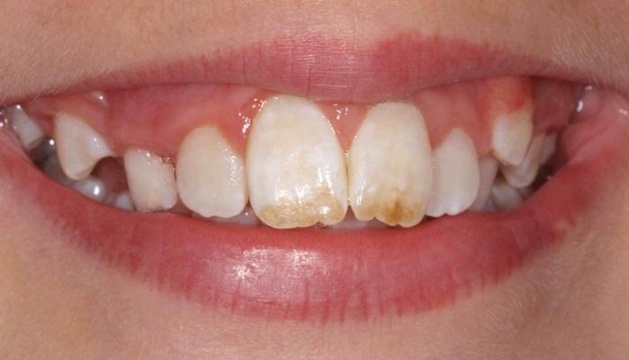 Признаки флюороза зубов становятся менее видимыми по мере взросления