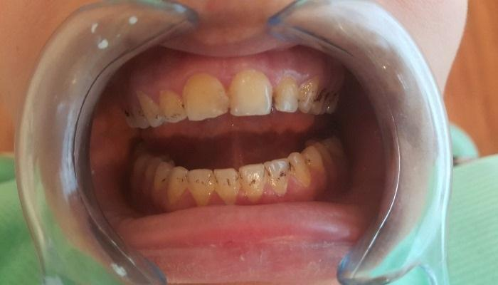 Каким образом зубной налет защищает грибковые инфекции от действия противогрибковых препаратов у детей