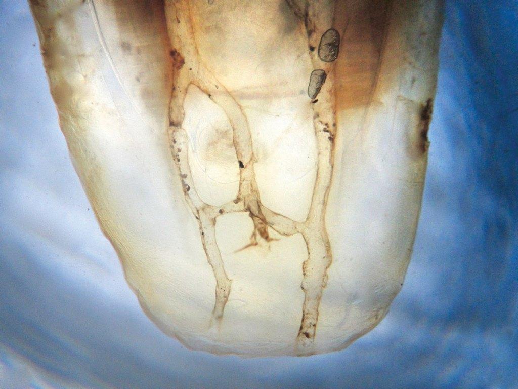 Лечение резистентных эндодонтических патологий