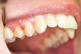 Гранулемы зуба: причины, диагностика и лечение