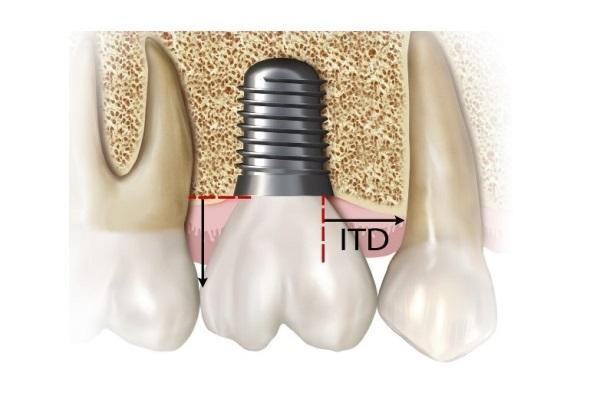 Влияние расстояния от имплантата до зуба на риск развития проксимальных кариозных поражений
