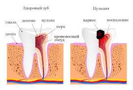Пульпит – лечить или удалять зуб