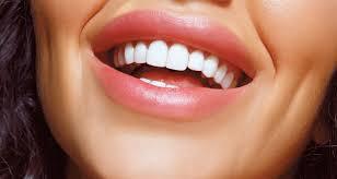 Голливудская улыбка — это так просто