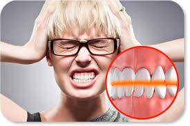 Лечение скрежета зубами