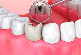 Чтоб возник кариес зубы не нужны