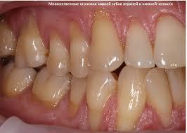 Симптомы рецессии десен – оголенные корни и чувствительность зубов