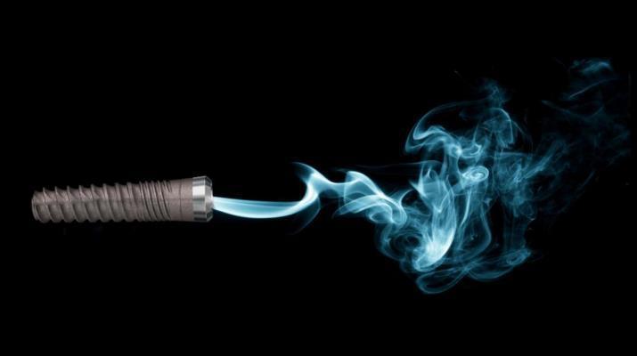 Имплантологическое лечение заядлых курильщиков