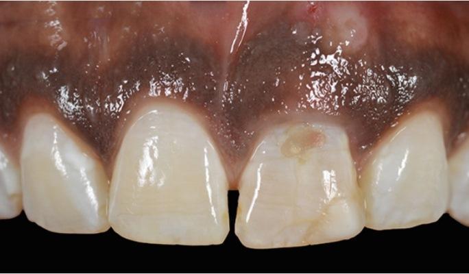 Концепция макроимплантата: парадигма восстановления области фронтальных зубов