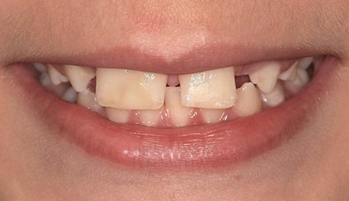 Лечение пациента со слиянием центрального и латерального резцов и адентией бокового резца