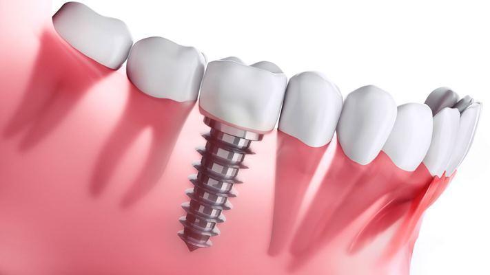 В Германии разработали противовоспалительное покрытие для зубных имплантатов