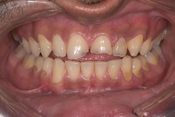 Минимально инвазивный подход к лечению эрозивной потери твердых тканей зубов