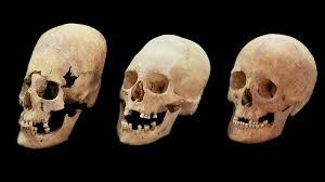 Антропологи выяснили, почему может меняться форма челюсти