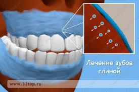 Лечение зубов глиной
