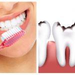 Стоматолог развенчала 5 мифов о кариесе