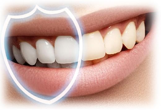 Уникальные наночастицы спасут от разрушения зубной эмали