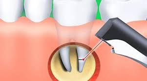 Резекция верхушки корня зуба, ход процедуры и послеоперационный период