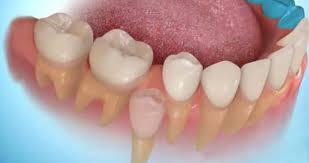 Найдены оптимальные условия для выращивания зубов из стволовых клеток зубного зачатка