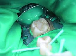 Стоматологическое лечение с коффердамом