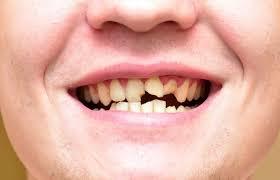 Что делать, если крошатся зубы?
